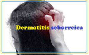 Dermatitis seborreica de cuero cabelludo