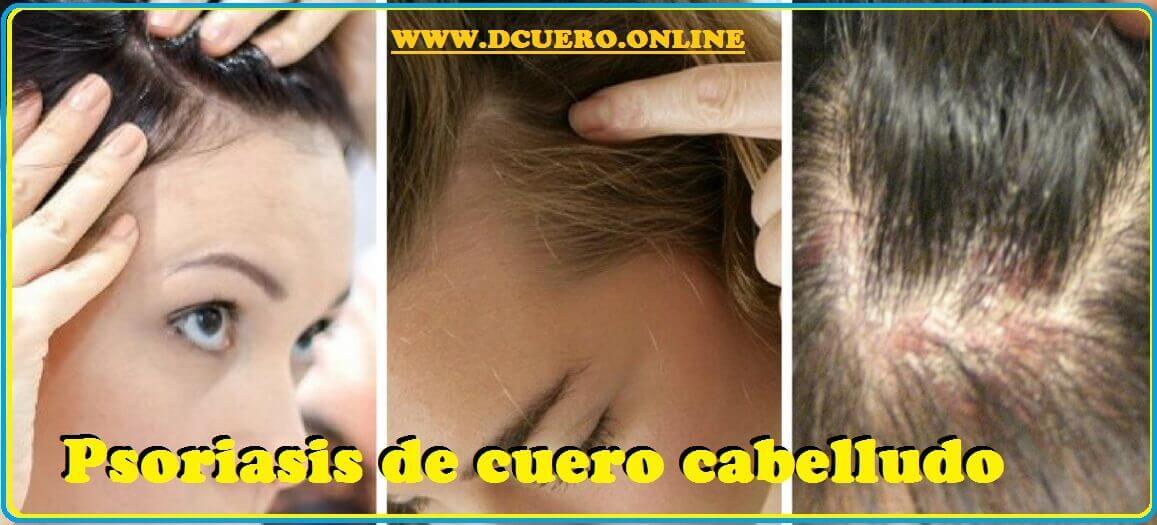 Psoriasis de cuero cabelludo